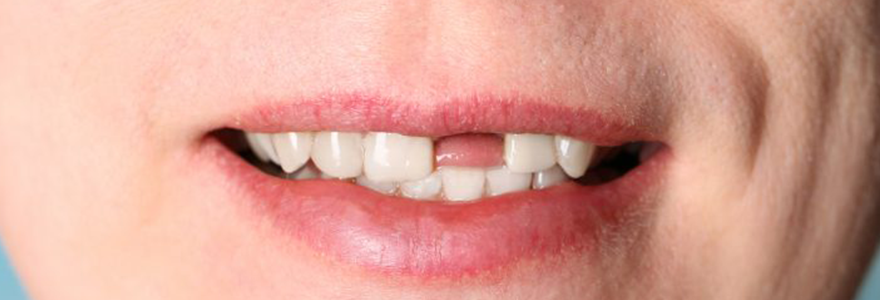 Dental Myth: Missing Teeth Are Always Replaced By Bridges Or Removable Dentures