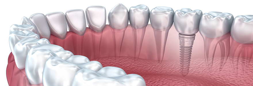 Why Get Dental Implants ?