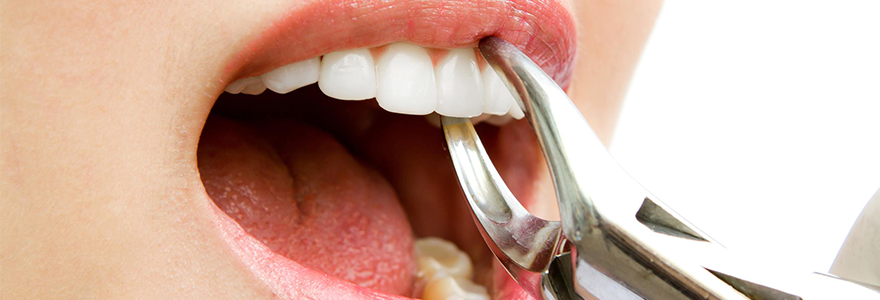 Top-3-Reasons-For-Teeth-Extraction