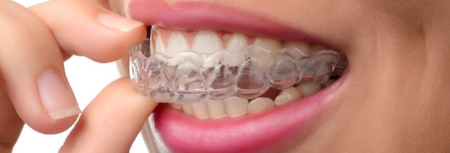 Invisalign Dental Braces Calgary NW