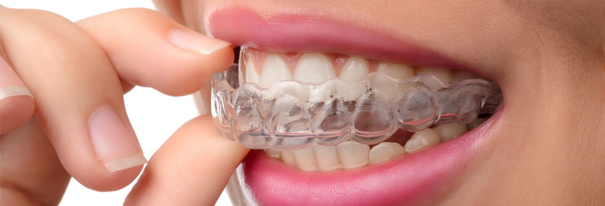 Prevention-of-Injuries-With-Mouthguards
