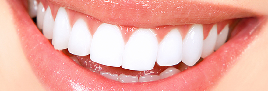 Professional Teeth Whitening – Questions You Should Ask Your Dentist