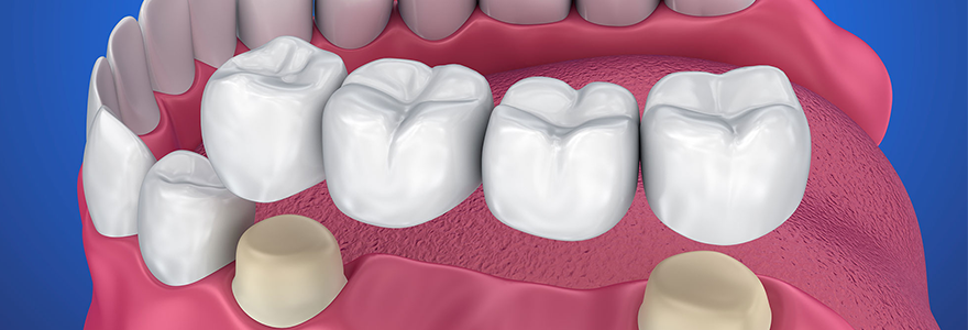 Replace Your Missing Tooth With Dental Crowns And Bridges