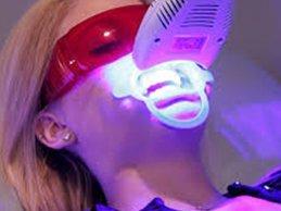 Zoom Teeth Whitening Calgary NW