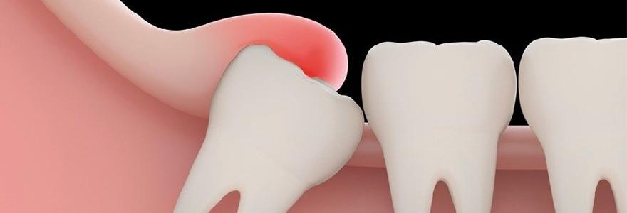 impacted-Wisdom-Teeth
