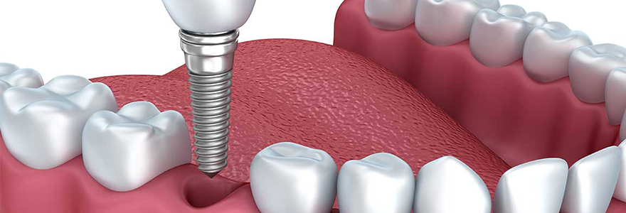 Why Should You Get Dental Implants?