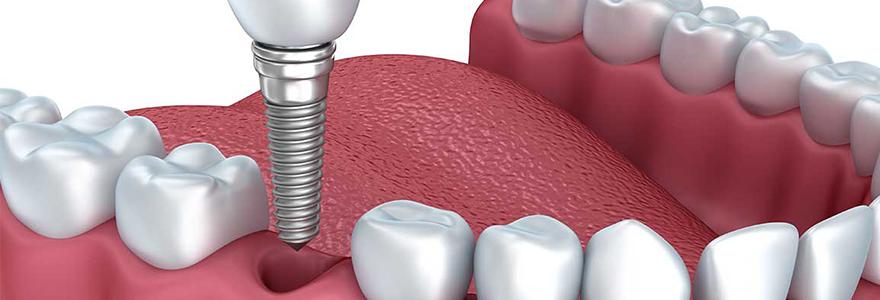 Why Should You Get Dental Implants?