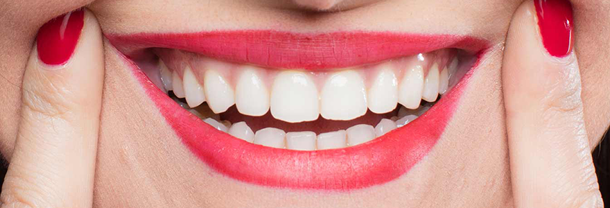 Difference-Between-Overbite-and-Underbite