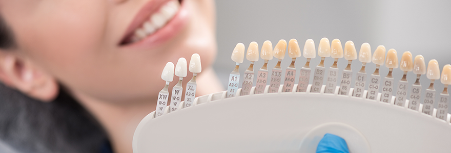 The-Advantages-&-Disadvantages-of-Dental-Veneers