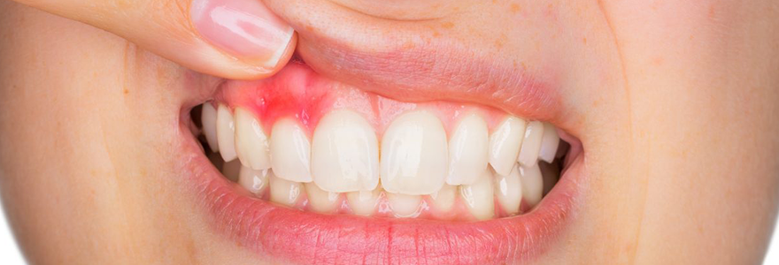 Three Symptoms That You May Have Gingivitis
