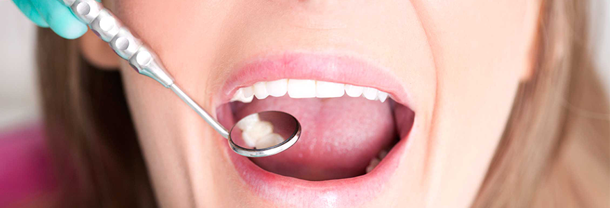 Tips to Reduce Tooth Sensitivity