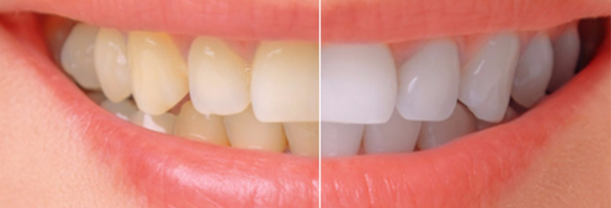 Different Types of Tooth Discoloration and Their Treatment