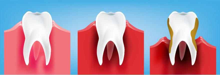 What-is-Gum-Disease
