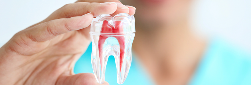 What-is-a-Root-Canal