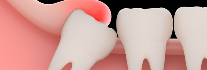 Why Wisdom Teeth Are Removed?