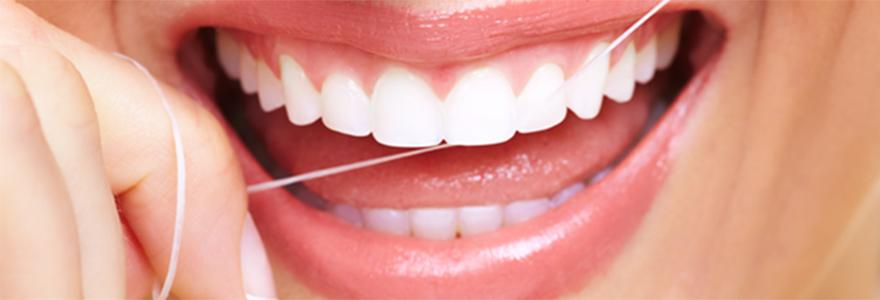 teeth-bonding