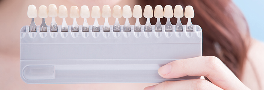 In-office vs. At-home Teeth Whitening