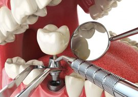 Dental Implants Calgary NW