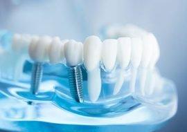 Dental Implants in Calgary NW