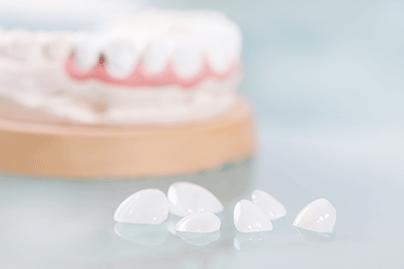 Dental Veneers Calgary NW
