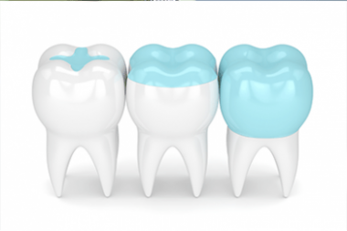 Fillings Inlays And Onlays Calgary NW