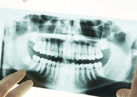 Digital X-rays In Calgary NW