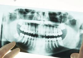 Digital X-rays In Calgary NW