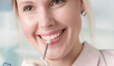 Some Essential Things You Might Not Know About Dental Veneers