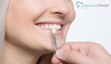 Ways Porcelain Veneers Can Enhance Your Smile